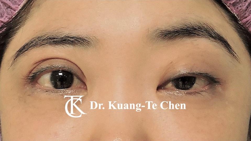 單側提眼瞼肌無力術前2