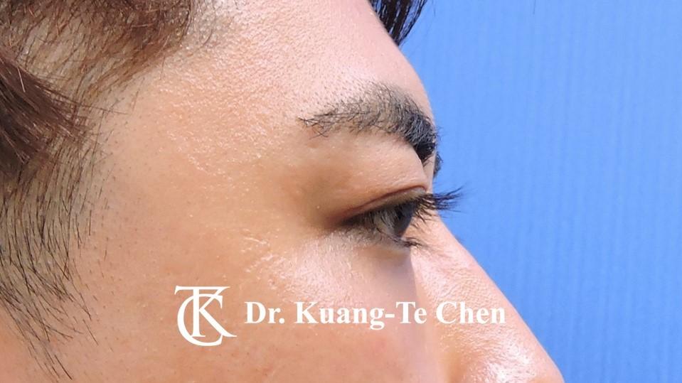 眼袋內開淚溝補脂Case 1 術後-3