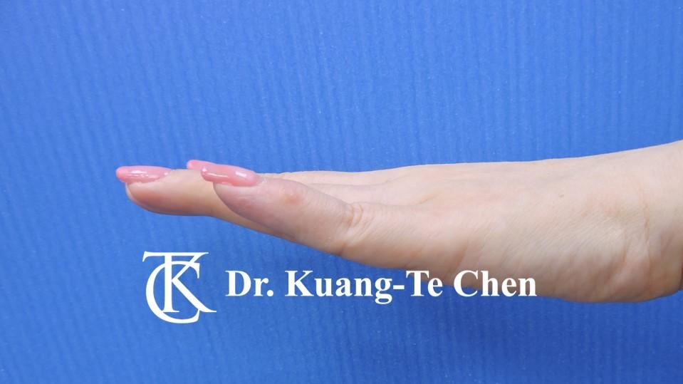 鎚狀指手術Case 3 術後-2