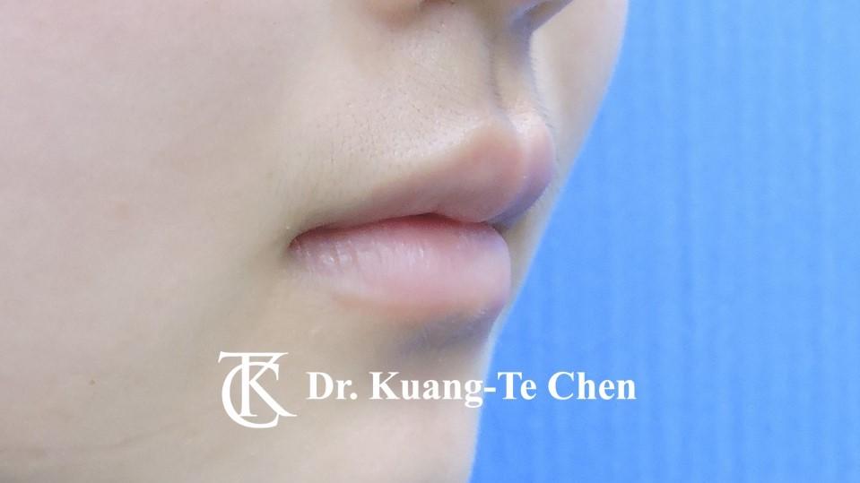 Case 6 上唇及下唇唇珠手術後-2