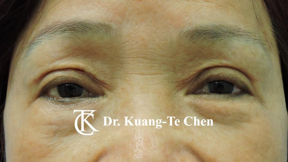 雙側重度提眼瞼肌無力術後10