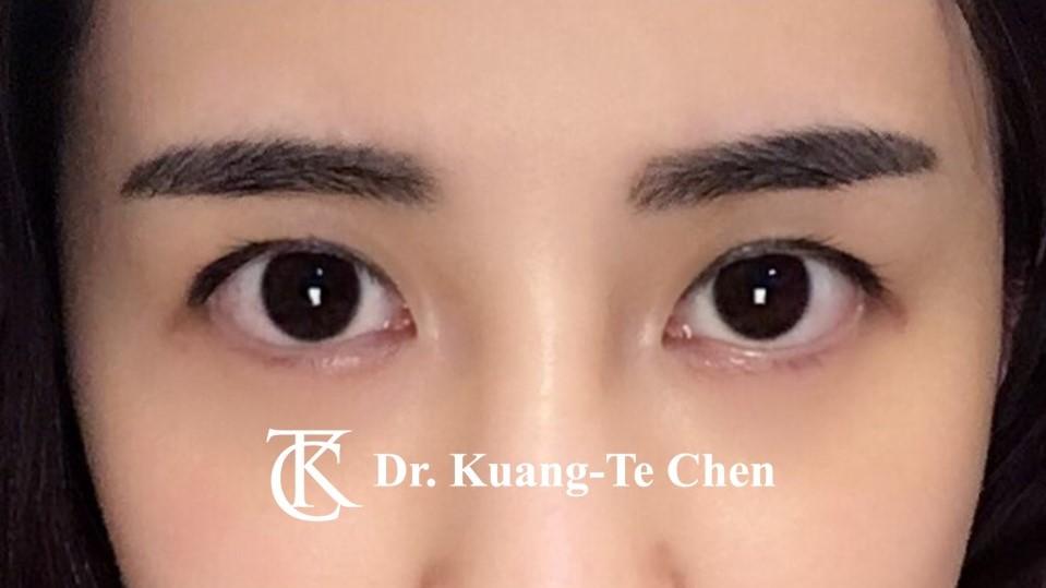 雙側提眼瞼肌無力手術後1