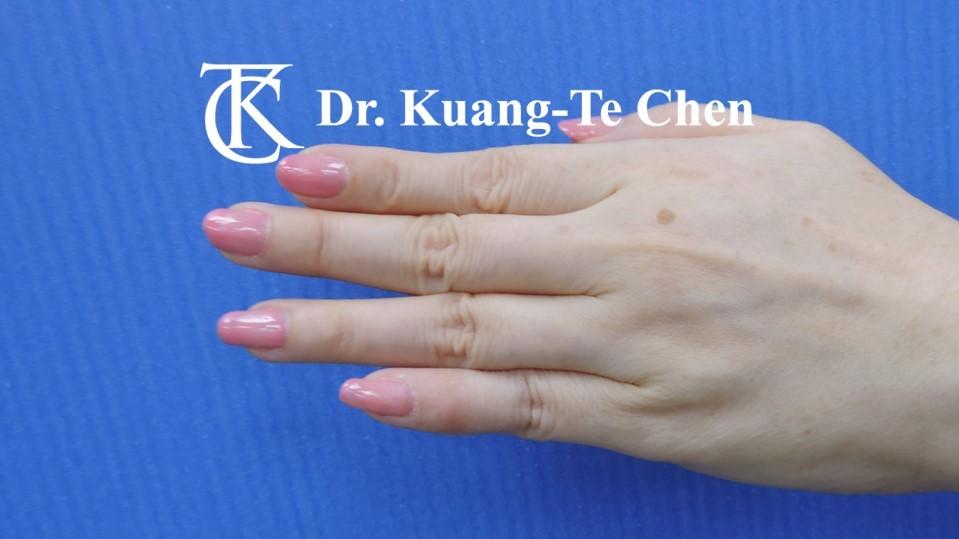 鎚狀指手術Case 3 術後-3