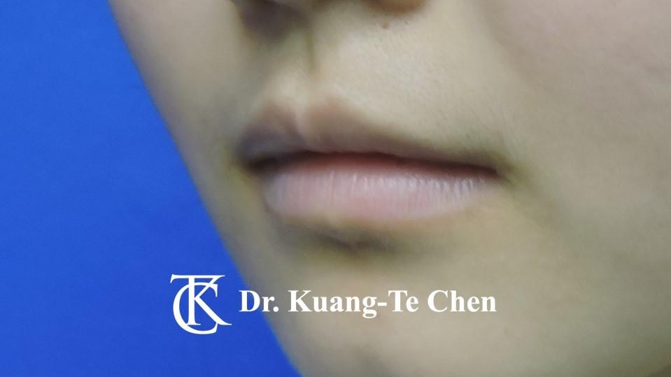Case 6 上唇及下唇唇珠手術前-3