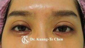 雙眼皮重修提眼瞼肌術前1