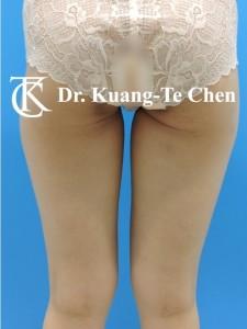 抽脂大腿環抽修臀線術前8