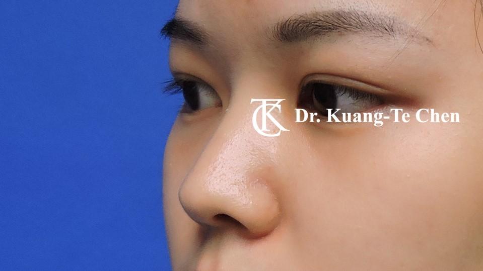 韓式結構式隆鼻 case 2 術前-1