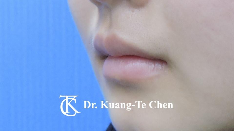 Case 6 上唇及下唇唇珠手術後-3