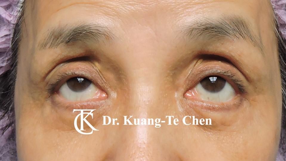 雙側重度提眼瞼肌無力術前上看照11