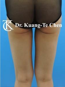 抽脂大腿環抽修臀線術後8