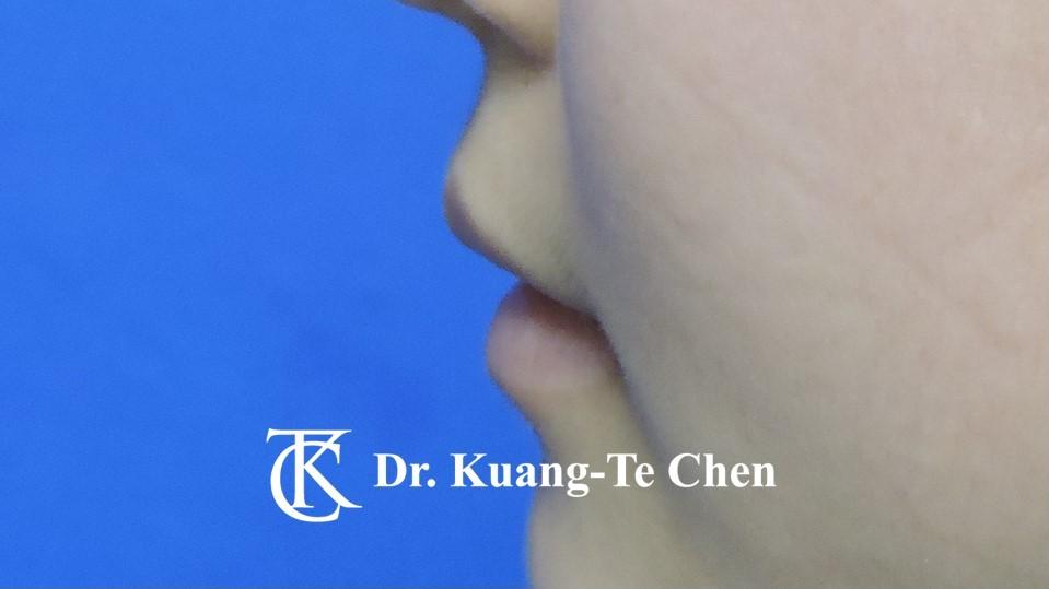 Case 6 上唇及下唇唇珠手術前-4