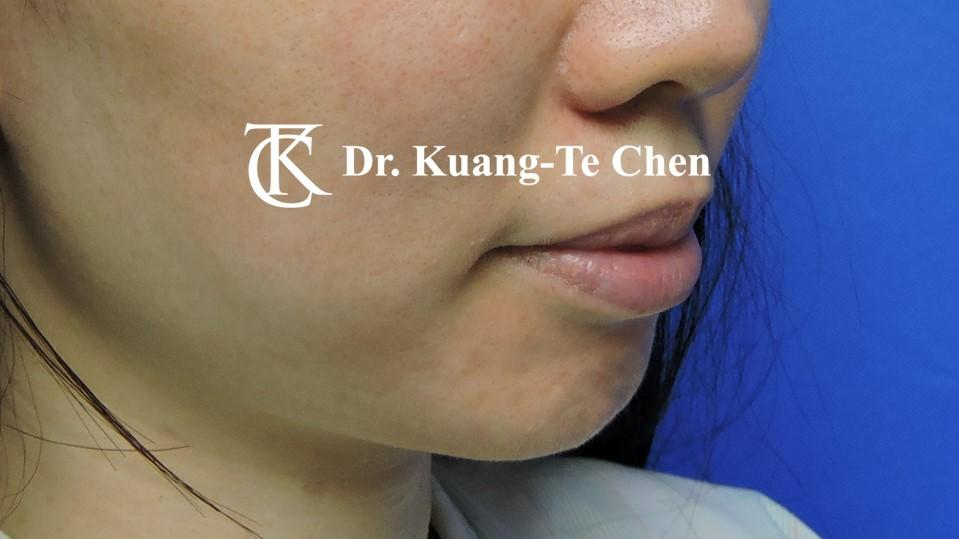 墊下巴手術Case 3術前 -1