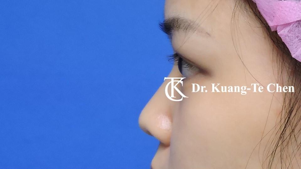 韓式結構式隆鼻 case 2 術前-2