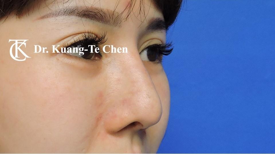 二次隆鼻 Case 4 術前-1