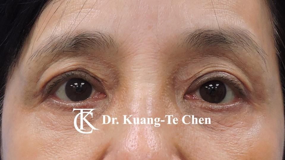 雙側重度提眼瞼肌無力術後11