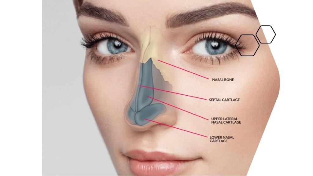 韓式結構式隆鼻
