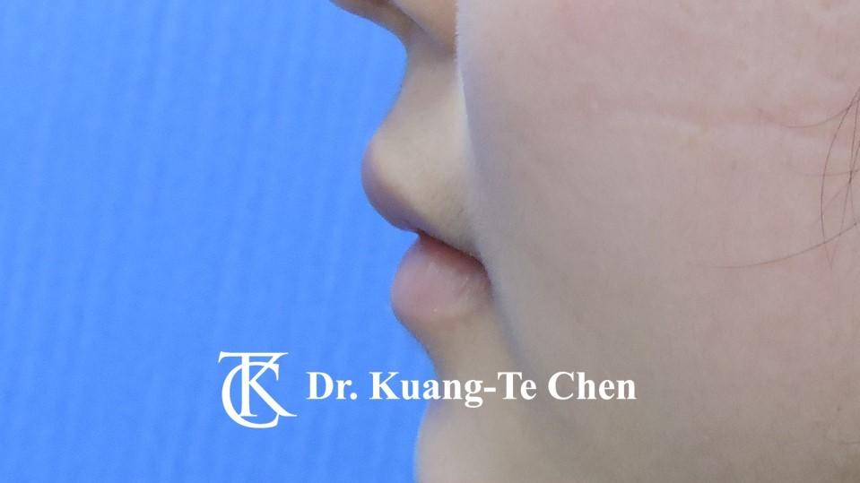 Case 6 上唇及下唇唇珠手術後-4