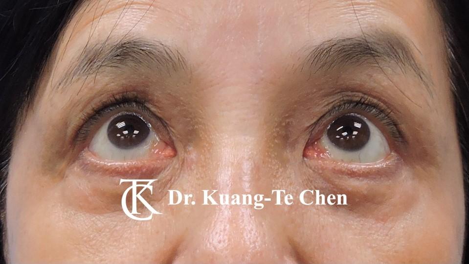 雙側重度提眼瞼肌無力術後上看照11
