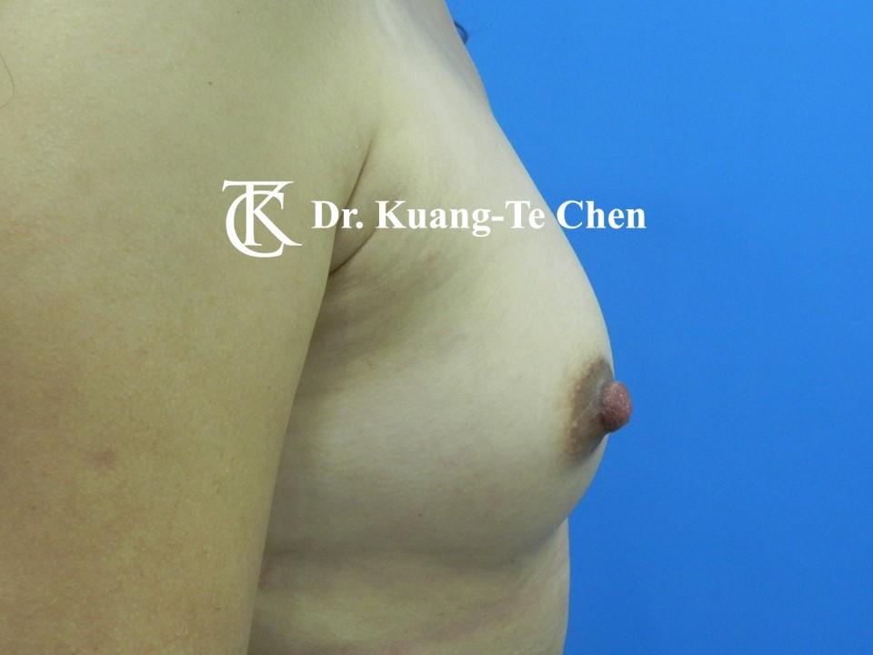 乳頭縮小術後