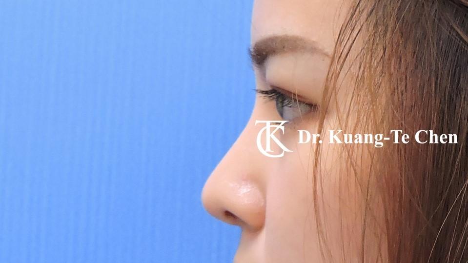 韓式結構式隆鼻 case 2 術後-2
