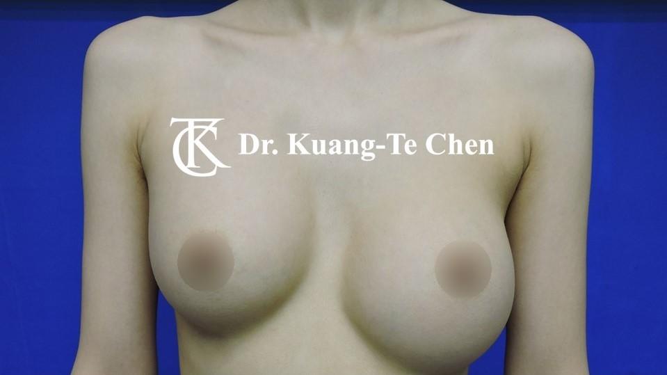 莢膜攣縮(以魔滴)二次隆乳術前-1