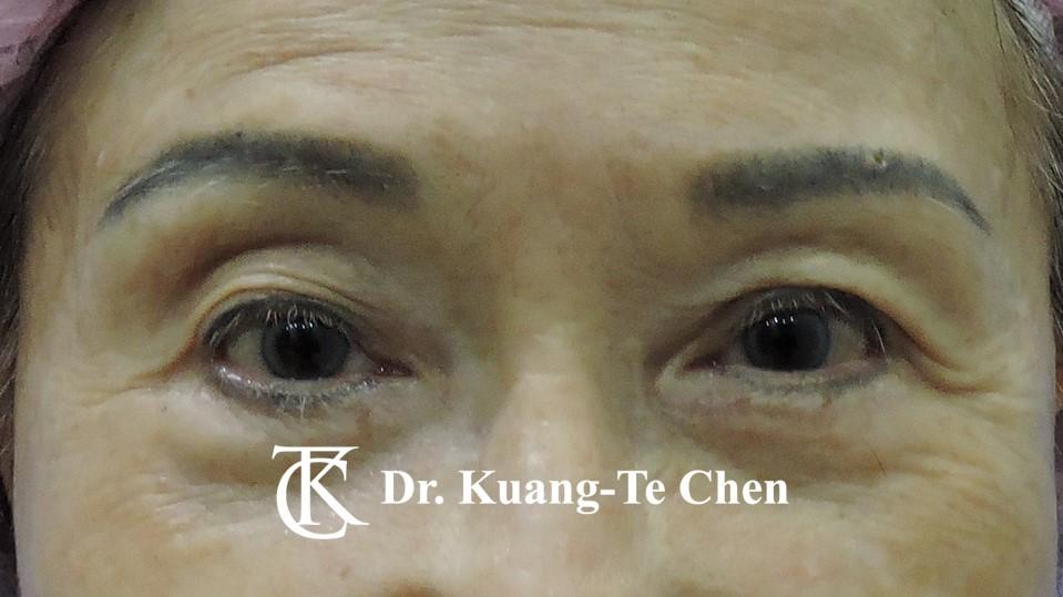 眼袋內開淚溝補脂Case 6 術前-1