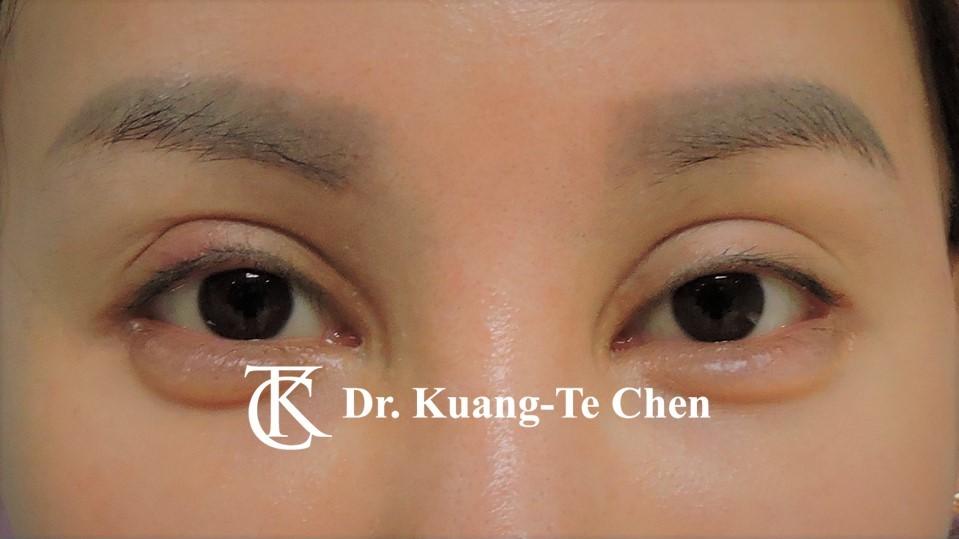 雙側中度提眼瞼肌無力術前12