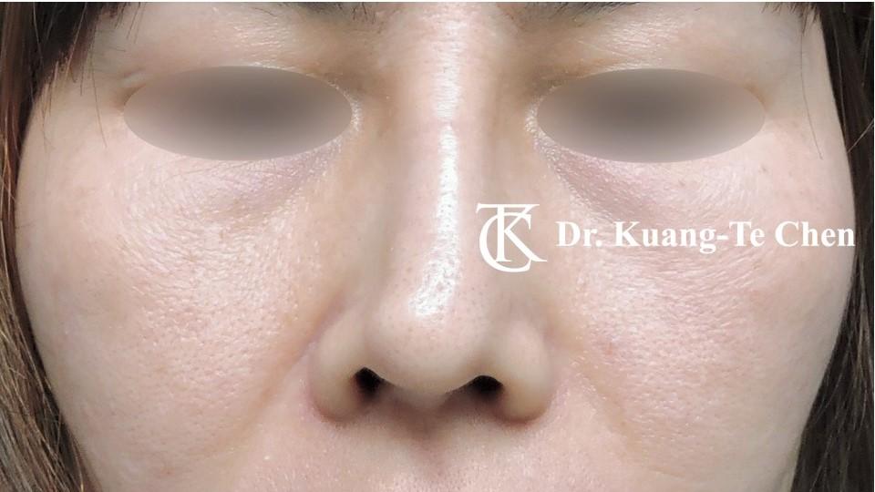 二次隆鼻 Case 1 術前-1