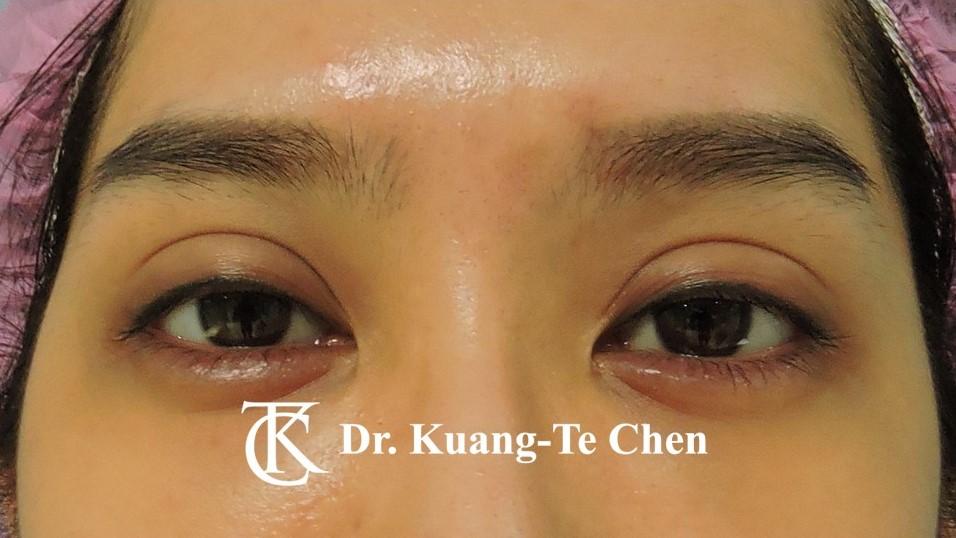 雙側中度提眼瞼肌無力術前6