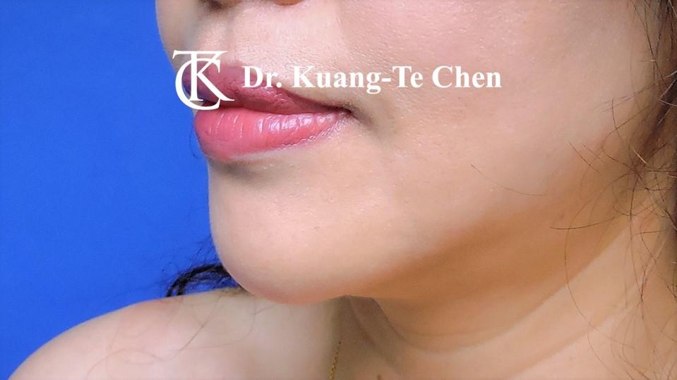 嘴邊下垂輪廓線微創雷射溶脂手術陳廣得醫師Case2 術後-1
