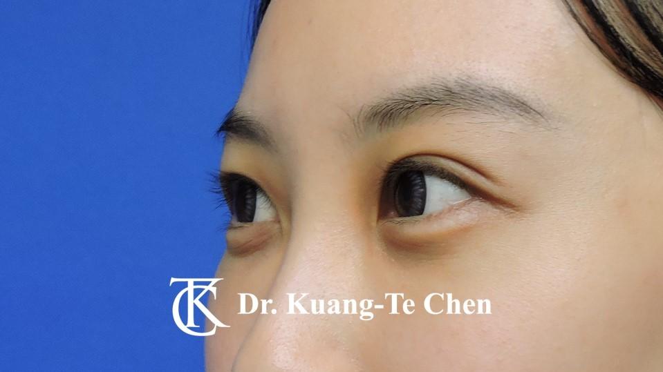 眼袋內開淚溝補脂Case 3 術後-2