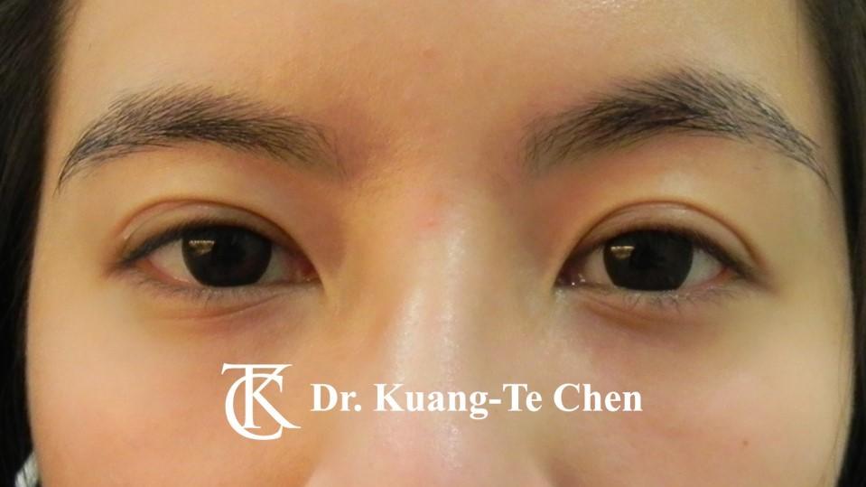 眼袋內開淚溝補脂Case 4 術後-1