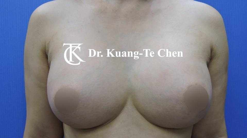 陳廣得醫師魔滴果凍內視鏡隆乳Case3術後-1