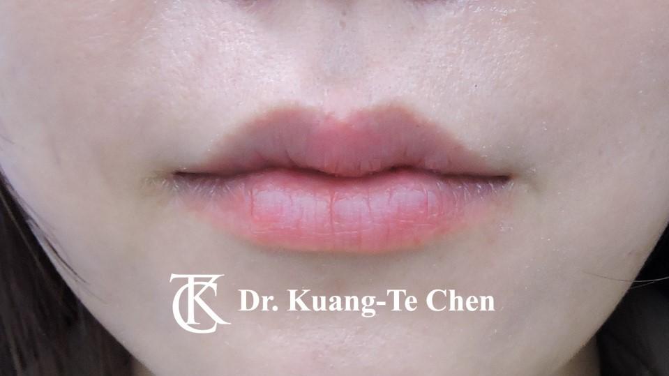 上唇修唇合併上下唇珠整型術後2