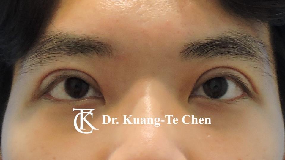 嚴重雙側提眼肌無力術後16