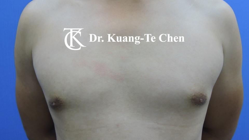 男性女乳症手術術後 陳廣得醫師 17