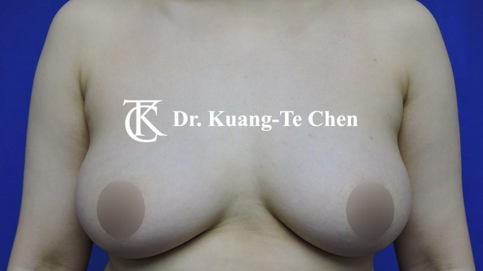 平胸手術 一字切 陳廣得醫師 術前-1