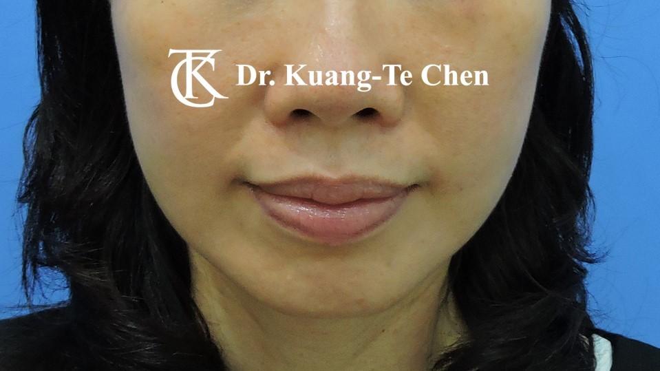 中下臉拉皮 陳廣得醫師專業拉皮手術說明術後-1