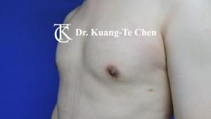 男性女乳症手術術後 陳廣得專業整形10