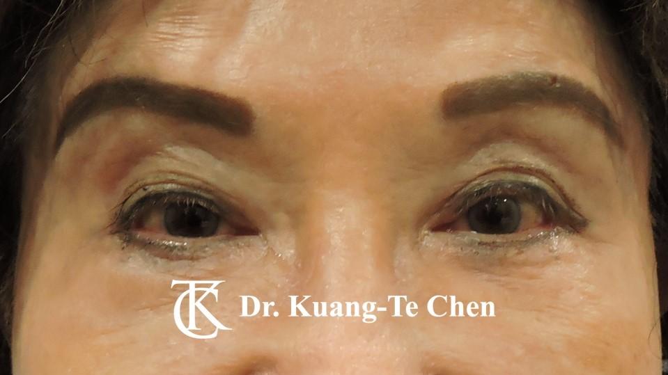 眼袋內開淚溝補脂Case 6 術後-1