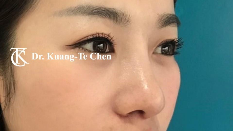 韓式結構式隆鼻 case 4 術後-1