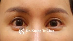 雙側中度提眼瞼肌無力術後12