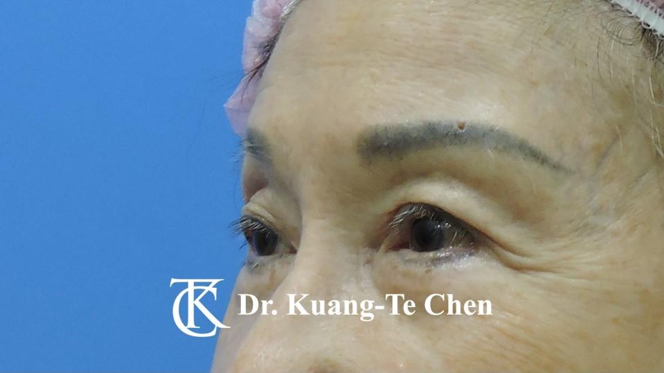 眼袋內開淚溝補脂Case 6 術前-2