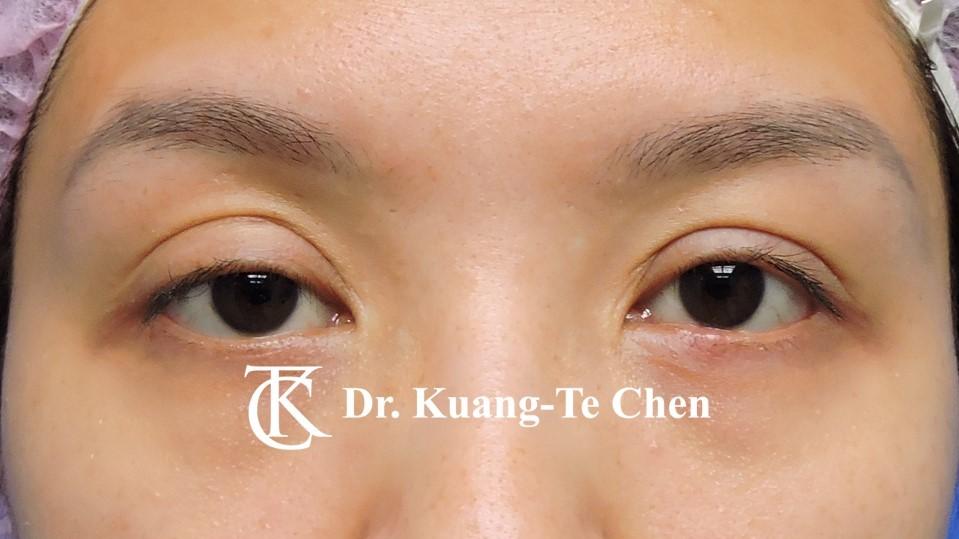 雙側提眼瞼肌無力術前13