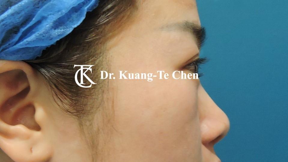 韓式結構式隆鼻 case 4 術前-2