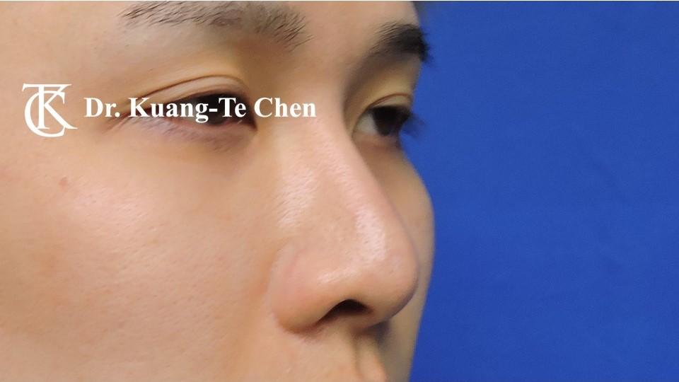 二次隆鼻 Case 5 術前-1