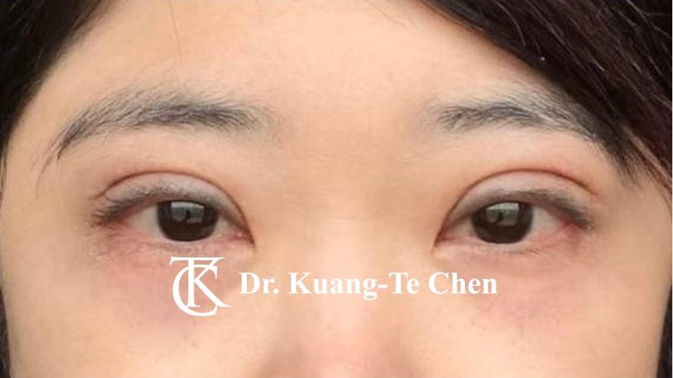 單側提眼瞼肌無力手術後2