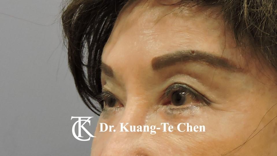 眼袋內開淚溝補脂Case 6 術後-2