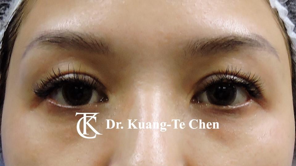 雙側提眼瞼肌無力術後13