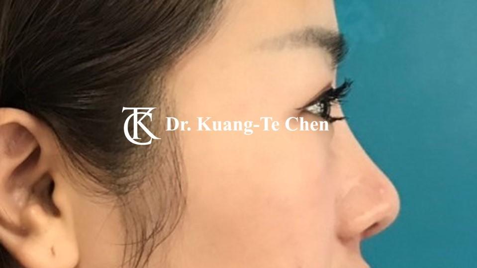 韓式結構式隆鼻 case 4 術後-2